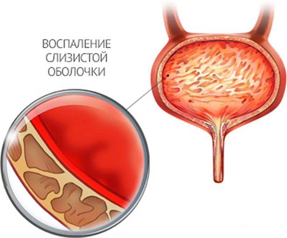 воспаление мочевого пузыря – цистит