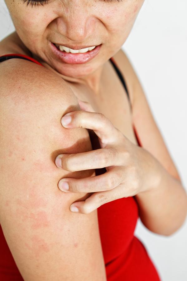 Диета Когда Есть Аллергическая Сыпь. Диета при аллергии у взрослых: меню, список продуктов, рецепты
